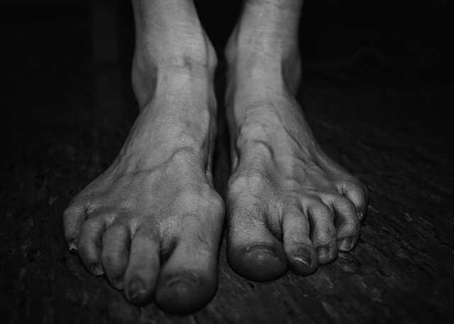 feral woman feet.jpg